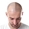 Głowa mężczyzny z przeszczepionymi włosami