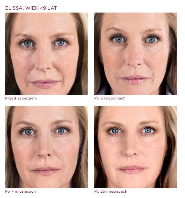 Twarz kobiety przed i po zabiegu