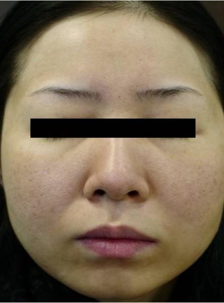 Skóra twarzy przed zabiegiem