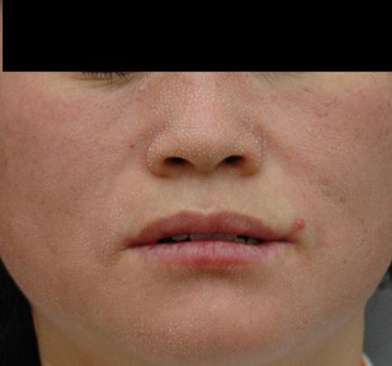 Skóra twarzy bezpośrednio po zabiegu