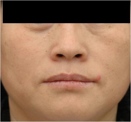 Skóra twarzy bezpośrednio przed zabiegiem