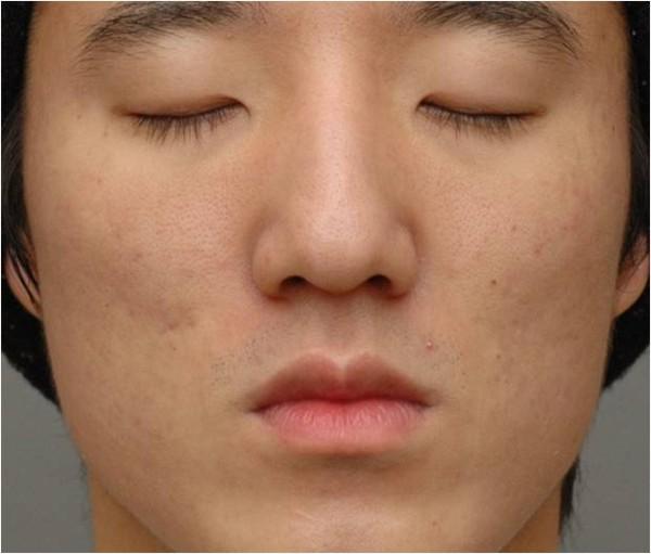 Trądzik na twarzy mężczyzny po zabiegu