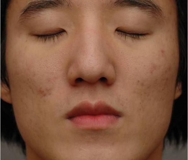 Trądzik na twarzy mężczyzny przed zabiegiem