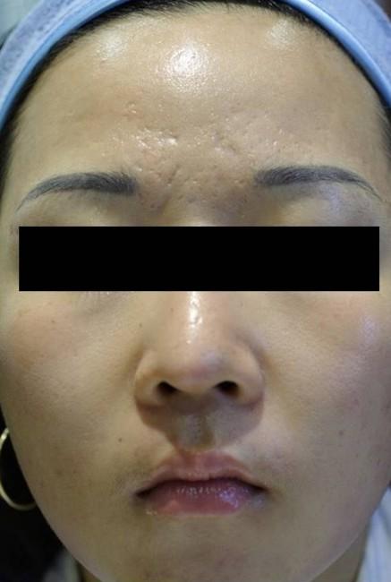twarz kobiety trądzik po dwóch zabiegach